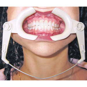 High Heat Cheek Retractor