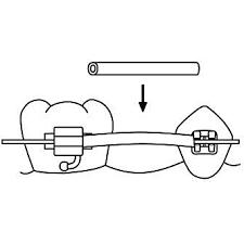 Tissue Guard .018 10' Spool Non Latex
