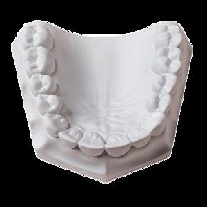 Laboratory Plaster 33Lbs (Whipmix)