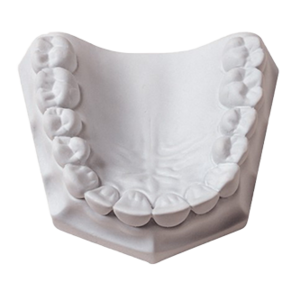 Orthodontic Plaster 33Lbs (Whipmix)