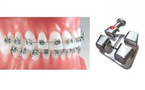 Ortho- Brackets