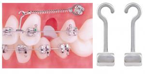 Ortho- Molar Bands & Tubes